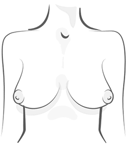 Pointy Breast Illustration