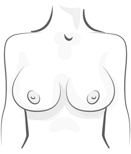 Wide Breast Illustration